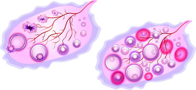 Polycystic Ovaries/Polycystic Ovarian Syndrome (PCO/PCOS)